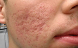 natural treatment Acne Scarring