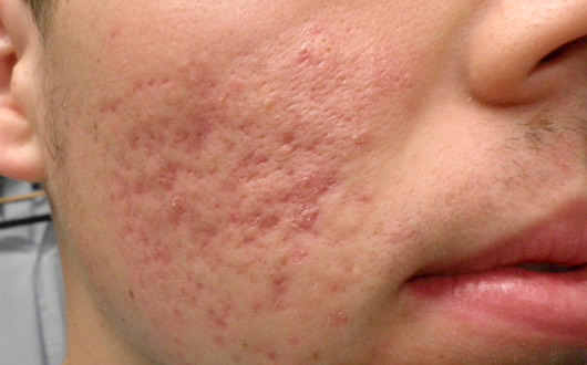 The Treatment Of Acne With Homeopathic Remedies